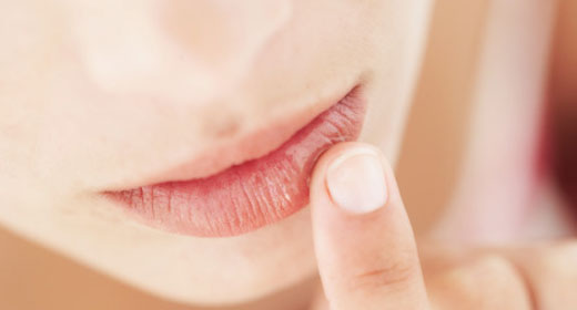 These tips will help you treat and prevent chapped lips: